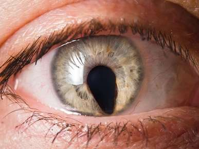 Iridocorneal Endothelial Syndrome